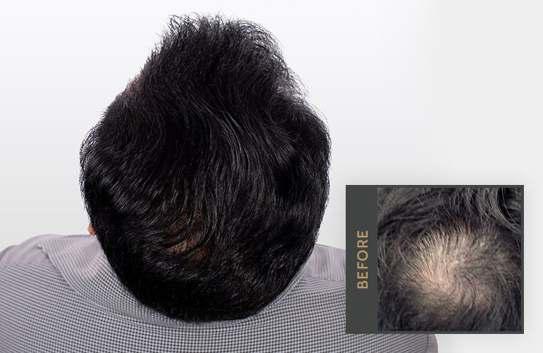 Surgical Hair Restoration
