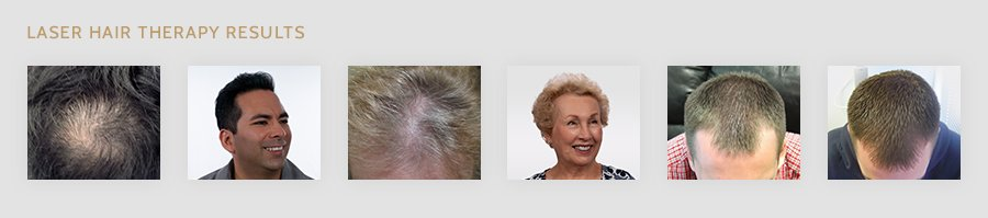 Laser Hair Therapy Before After Photos